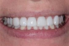 smile mouth white teeth