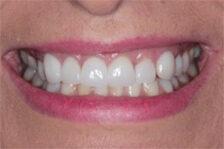 smiling mouth white teeth