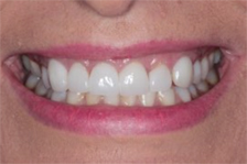 smiling mouth white teeth