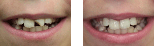 before and after image of teeth